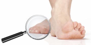 Nagelpilz Behandlung - Was hilft wirklich gegen Nagelpilz?
