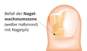 Nagelpilzbefall der Nagelwachstumszone