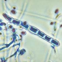 trichophyton-rubrum