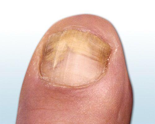 Bild zeigt einen Fußnagel mit Nagelpilz, bei dem sich Nagelbett und Nagelrand gelb-bräunlich verfärben