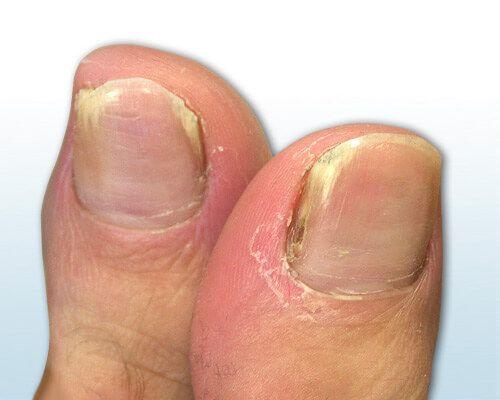 Bild zeigt zwei von Nagelpilz befallenen große Zehen mit gelb-bräunlicher Verfärbung am Rand
